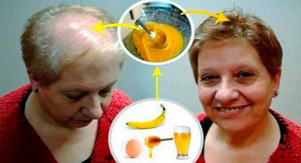 Esta receta hará crecer tu cabello como loco...deja a todos los doctores con la boca abierta!