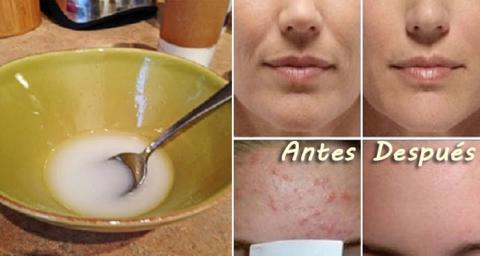 Mascarilla de bicarbonato y aceite de coco para eliminar el acne y manchas