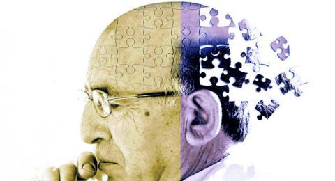 La enfermedad del Alzheimer se puede prevenir, sólo un ejercicio por día y tu memoria estará nueva