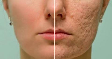 Frota esto en cualquier cicatriz, arruga o mancha de tu piel y desaparecerá por completo