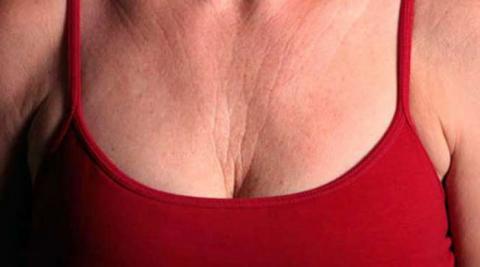 Estos son los remedios naturales para borrar las arrugas del pecho y el cuello