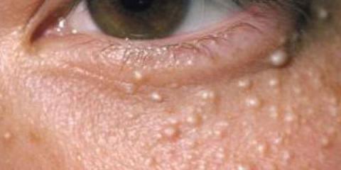 Si tienes estas bolitas blancas alrededor de los ojos, deberías leer esto!