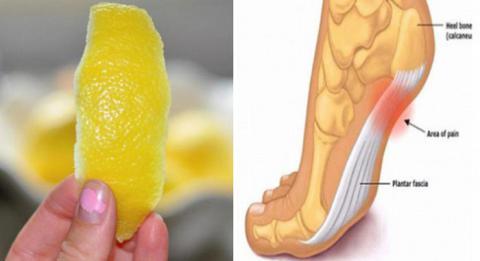 Una cáscara de limón puede quitar el dolor de las articulaciones para siempre.