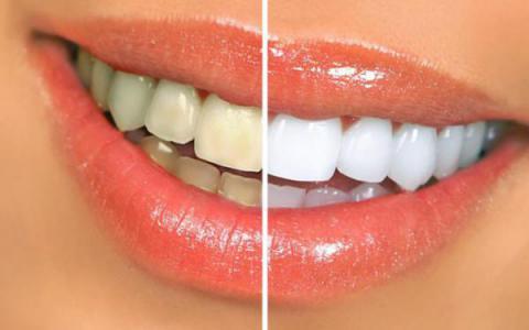 Receta natural para blanquear tus dientes y de paso acabar con la caries y el mal aliento
