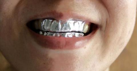 Ella cubrió sus dientes con papel de aluminio por 15 minutos. ¡El resultado te sorprenderá!