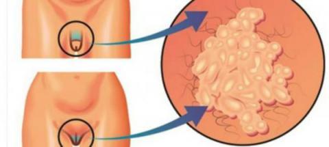 Se cree que muchas personas ya estarían infectadas por esta nueva infección de transmisión sexual