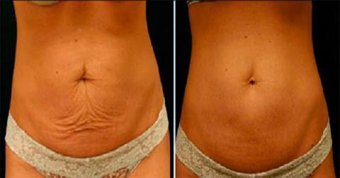 20 maneras de tonificar la piel después de perder peso
