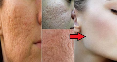 Con estos 4 tratamientos naturales podrás cerrar los poros de tu rostro en solo 3 minutos!