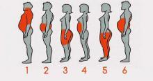 6 tipos de obesidad ¿Cual crees que es la tuya?