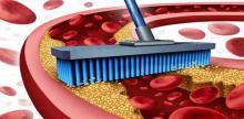 La salud del corazón es importante para una buena salud general. Los bloqueos en el corazón pueden causar derrame cerebral, presión arterial alta, diabetes y aterosclerosis. Por lo tanto, te vamos a dar a conocer los mejores 20 alimentos que van a ayudarnos a eliminar eficazmente las obstrucciones en las arterias, manteniendo un corazón sano. ¿Cómo barrer con todo el colesterol de las arterias? Cúrcuma La aterosclerosis es una enfermedad que aparece cuando las arterias se endurecen, causadas por la inflamac