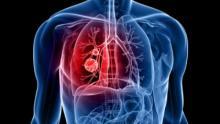 Cáncer de pulmón: 6 señales que no deberías ignorar para detectarlo a tiempo