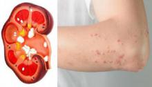 Cuidado!! 8 síntomas que produce un riñón dañado y que la mayoría ignora.