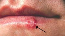 El 25% de las personas son portadoras de este virus pero pocos saben curarse de los herpes labiales