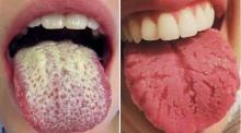 9 Señales de Alerta que tu lengua te está enviando ¡No las ignores!