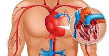 El cuerpo avisa 1 mes antes de un infarto. Las pistas ocultas que todos deberíamos conocer