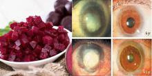 Los doctores buscan una explicación para este vegetal: devuelve la visión, limpia la grasa del hígado y colon