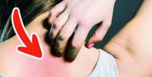 7 Primeros síntomas de cáncer que el 90% de las personas ignoran