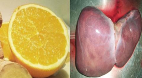 En solo 4 días limpiarás tu hígado, bajarás de peso y desintoxicarás tu organismo