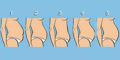 5 Tipos de panza y a qué se debe cada una ¿Cuál es la tuya?
